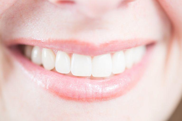 Perfekte, weiß, strahlende Frauenzähne